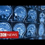Covid survivors may face life-long brain injuries – BBC News