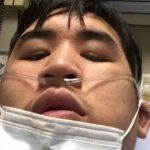Burnaby man called 'youngest' COVID-19 critically ill patient