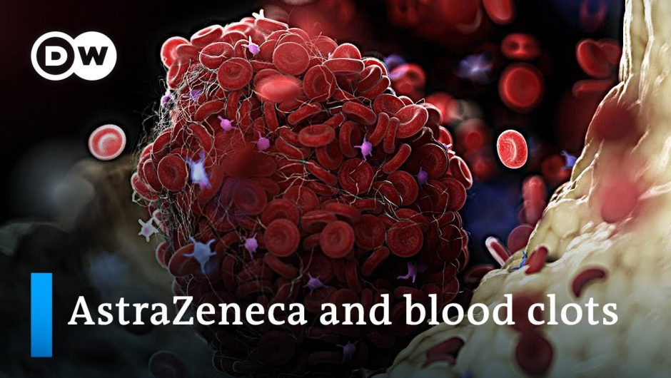 """Clear link between AstraZeneca and rare blood clots"" 